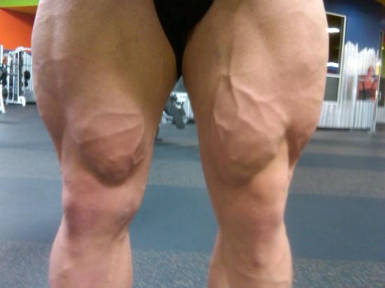 Marc Lobliner's legs