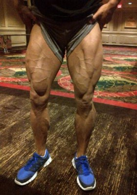 Massive legs
