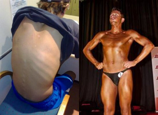Michael Mitchell before and after.
